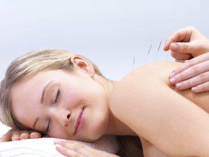 Akupunturnadeln am Rücken einer Frau